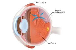 Retina Transplant Washington Dc Bethesda Md Your